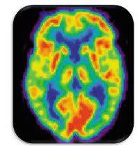 brain MINDSET shift - myndset